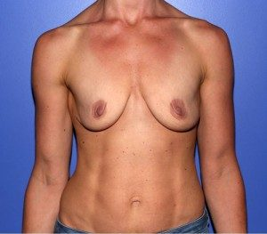 Patient before breast augmentation in NYC