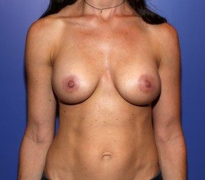 Patient after breast augmentation with Dr. Cangello