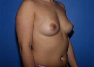 Breast Augmentation patient before