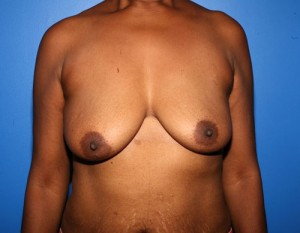 Breast Augmentation with Lift patient before