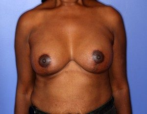 Patient results after a breast lift