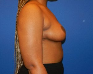 Breast Reduction patient after