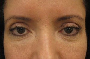 Results of NYC browlift treatment