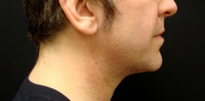 Chin Implant patient after
