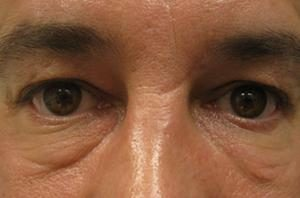 Puffy undereyes before blepharoplasty surgery