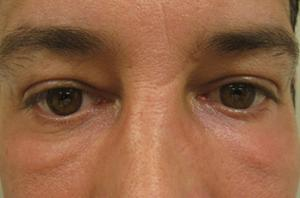 Blepharoplasty patient after