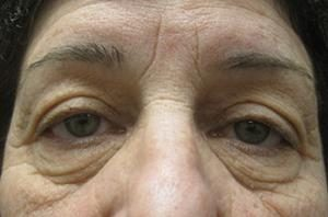 Female patient before an NYC eyelid lift