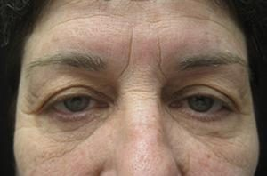Results of an eyelid lift in NYC from Dr. Cangello