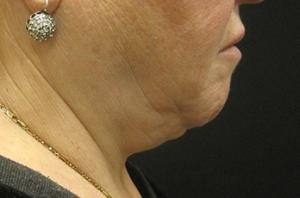 Patient in side before before a neck lift
