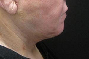 Patient displaying results of NYC necklift