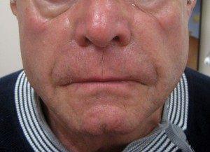Patient before dermal filler treatment