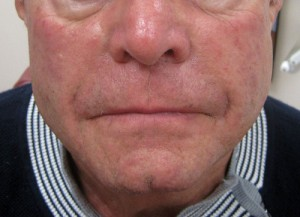Dermal Fillers patient after