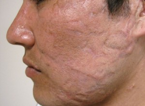 Laser Treatment patient after