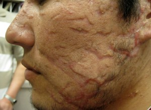 Laser Treatment patient before