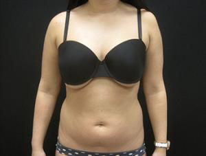 Liposuction patient before