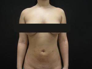 Results of NYC lipo with Dr. Cangello
