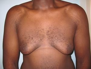 Patient before gynecomastia surgery