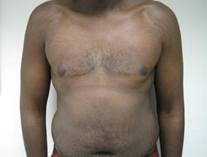 Results of male breast reduction in NYC