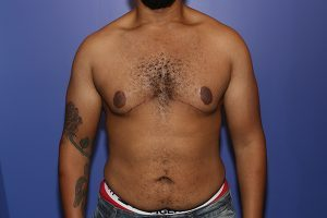 After a male breast reduction in NYC