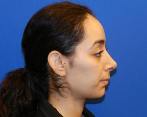 Results of an NYC nose job from Dr. Cangello