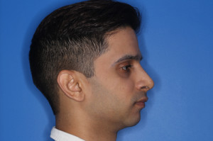 Result of rhinoplasty with Dr. Cangello