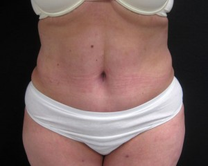 Results of NYC abdominoplasty with Dr. Cangello