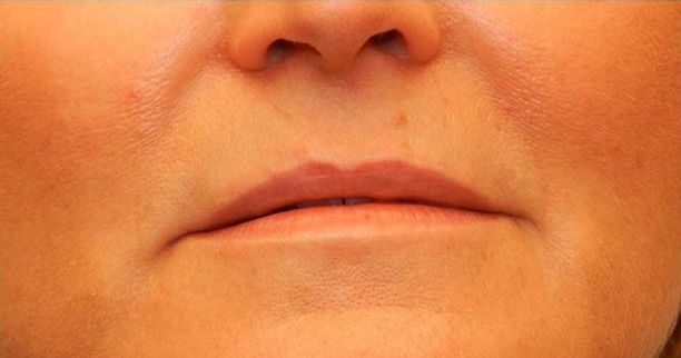 Patient before lip augmentation