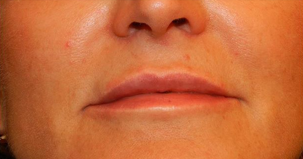 Lip Augmentation patient after