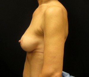 Breast Augmentation Revision patient after