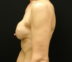 Breast Augmentation Revision patient before