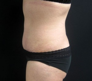 Profile view of NYC tummy tuck results