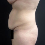 Side view of patient before a tummy tuck