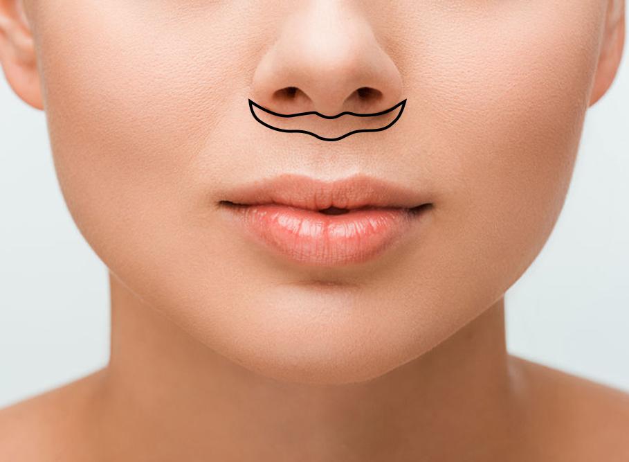 Upper lip lift diagram