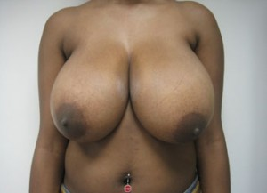 Before NYC breast reduction with Dr. Cangello