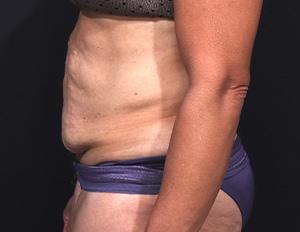 Dr. Cangello Tummy Tuck Procedure Before Picture 3