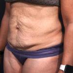 Dr. Cangello Tummy Tuck Procedure Before Picture 2