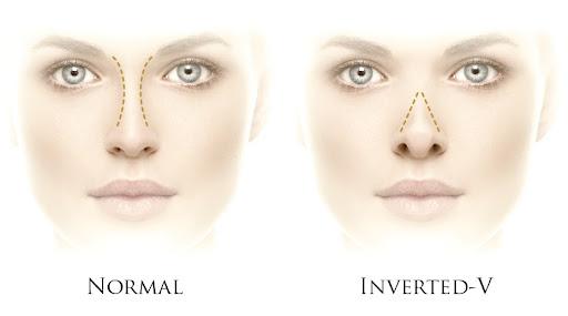 Inverted V nasal deformity